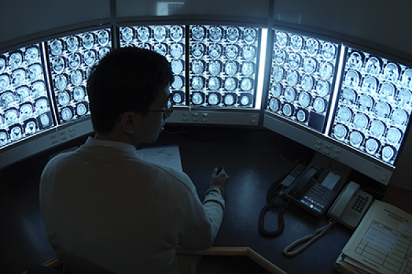 Photo of a doctor looking at brain xray images.