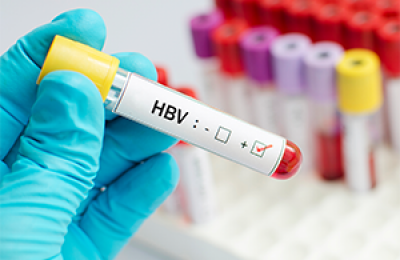 Hepatitis B Vial